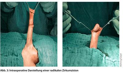 Entfernung frenulum Frenulotomie: Kurzes